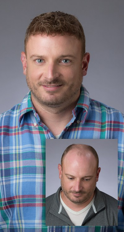 Man before and after hair growth procedure by Eldorado