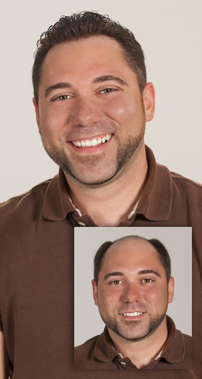 man with permanent hair replacement before and after
