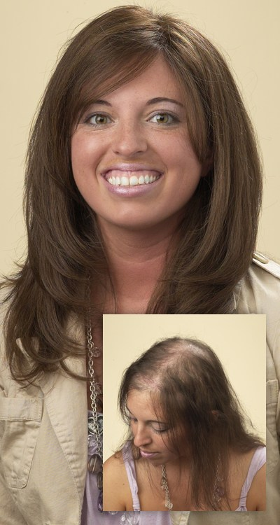 Women with curly hair happy about Eldorado hair replacement