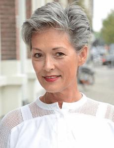 woman that used Eldorado's hair loss system