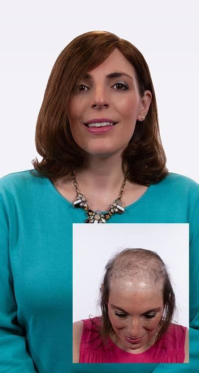womans hair restoration success